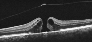 Macular hole OCT scan image