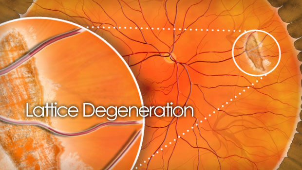 Lattice degeneration