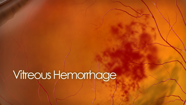 Vitreous hemorrhage photo