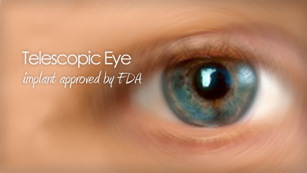 Telescopic eye implant