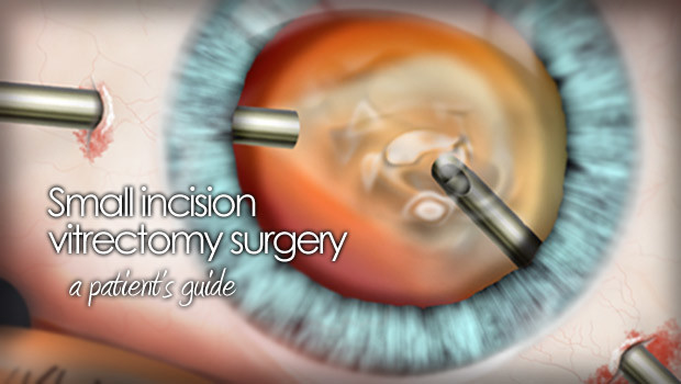 Vitrectomy eye surgery illustration