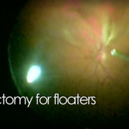 Pars-plana vitrectomy for floaters in the eye