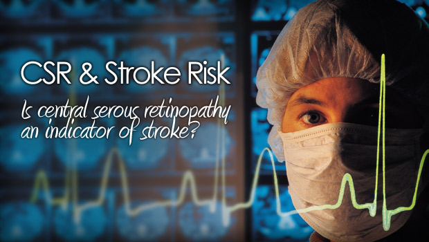 Is Central Serous Retinopathy An Early Indicator Of Stroke