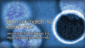 Stem cell replacement therapy for RP and AMD