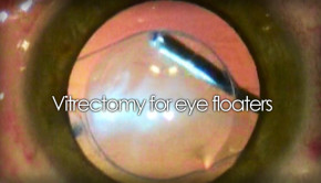 Vitrectomy for eye floaters video footage