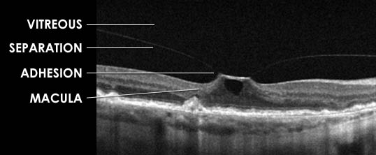 Vitreomacular traction graphic