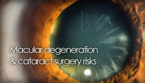 Patients with AMD can have cataract surgery