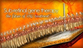 Sub-retinal injection for gene therapy
