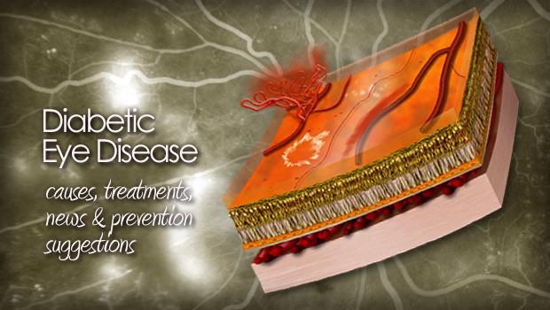 Diabetic eye disease image