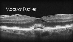 Macular pucker photo