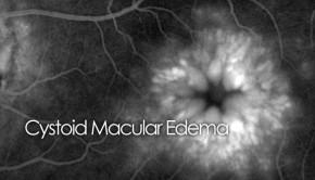 CME - Cystoid macular edema