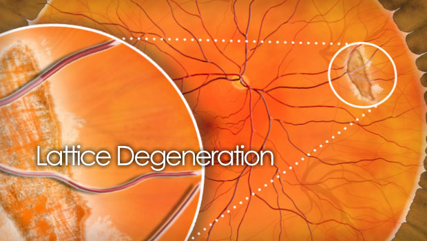 Lattice Degeneration Causes Treatments And Surgery