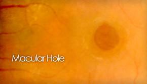Macular hole