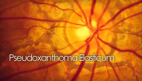 pxe of the retina - lacquer cracks - angioid streaks