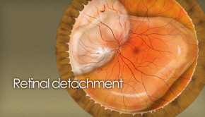 Retinal detachment and tears