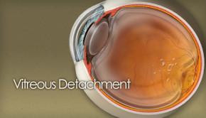 Vitreous detachment