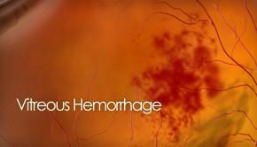 Vitreous hemorrhage photo