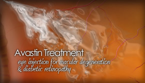 Avastin treatment for macular degeneration and diabetic retinopathy