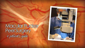 Macular pucker peel surgery photo