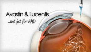 Lucentis and Avastin for retinal vein occlusion and diabetic retinopathy