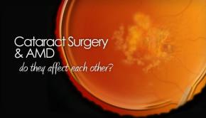 Cataract surgery with macular degeneration