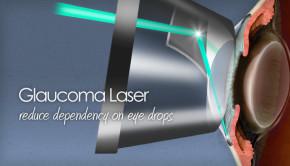 glaucoma laser