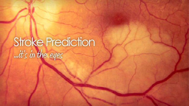 Stroke prediction in the eyes