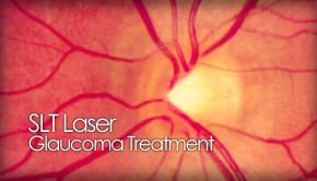 SLT glaucoma laser