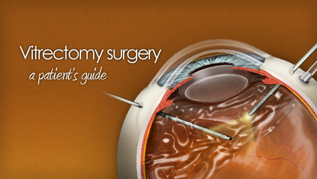 Guide to vitrectomy eye surgery