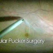 Macular pucker peel surgery video