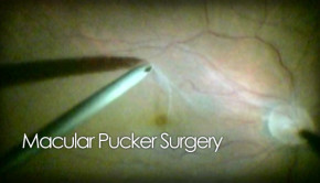 Macular pucker peel surgery video