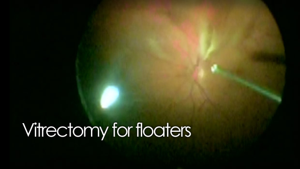 Pars Plana Vitrectomy For Floaters Video