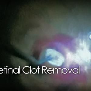 Sub-retinal surgery clot removal