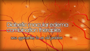 Diabetic macular edema pic