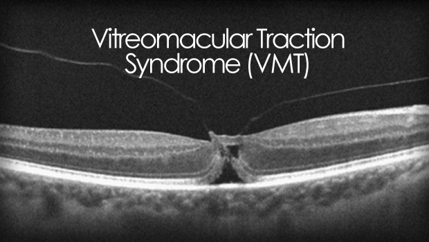 Vitreomacular traction syndrome