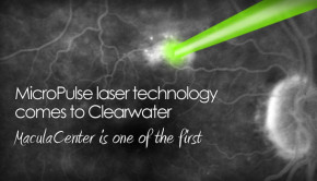 Micropulse laser for retina tampa bay clearwater