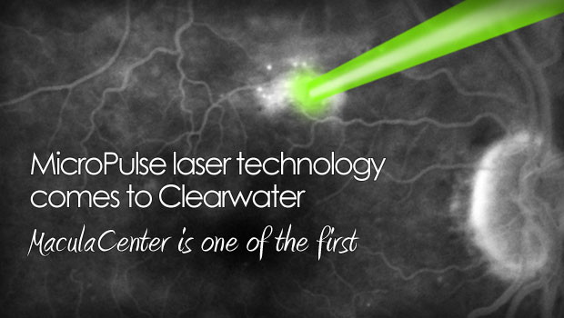 Micropulse Laser Therapy For Retina In Tampa Bay Florida