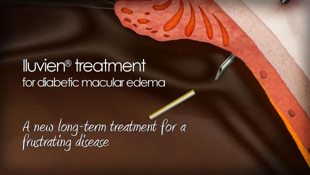 Iluvien Treatment For Diabetic Macular Edema